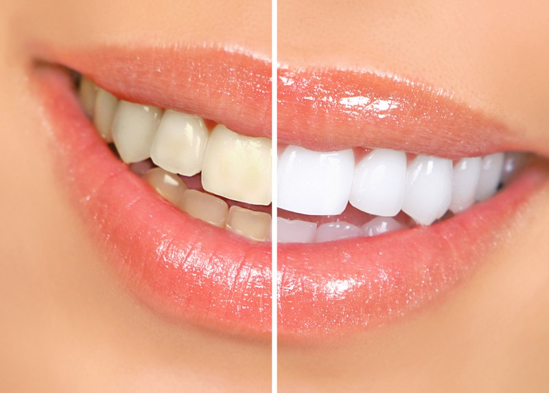 teeth whitening services Ahwatukee Foothills, AZ
